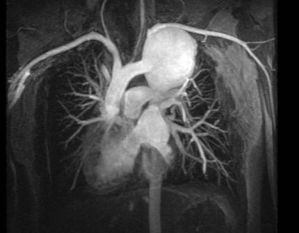 On this blog, MRA does not mean Magnetic Resonance Angiography